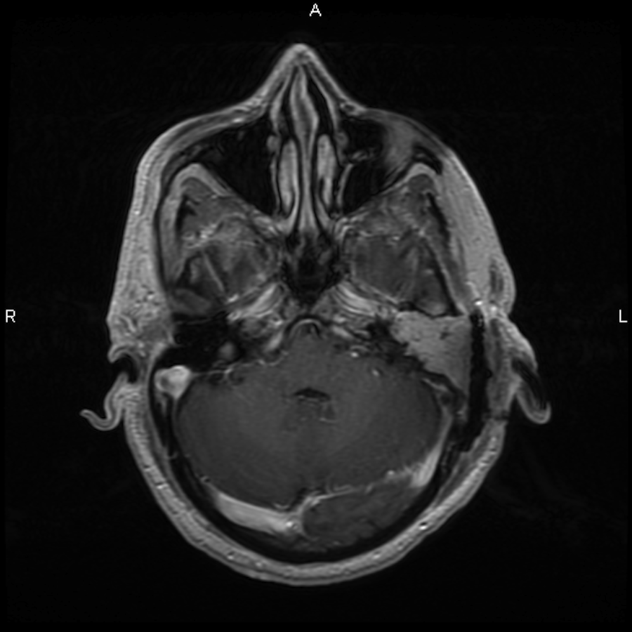 geniculate ganglion mri - photo #21