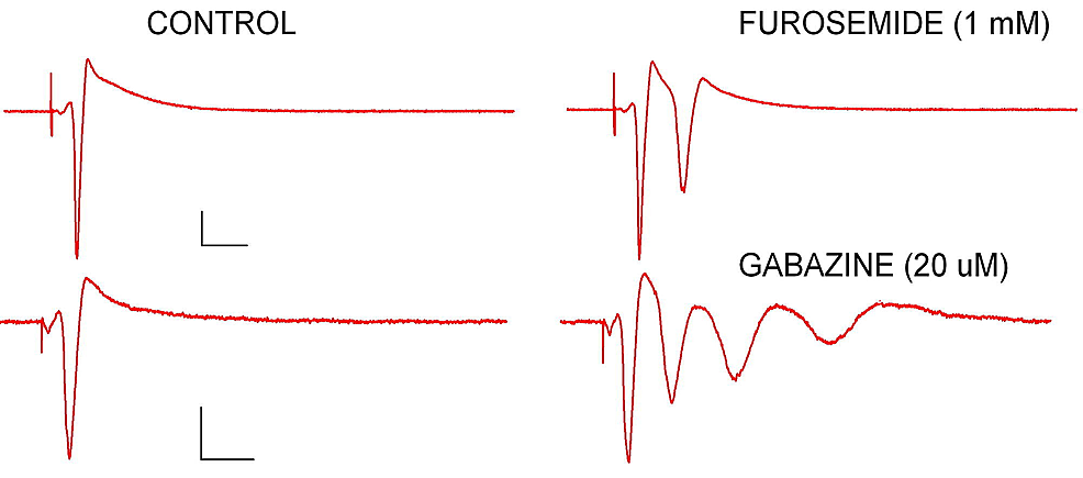 Two-forms-of-GABA-inhibition-can-be-pharmacologically-isolated-using-selective-antagonists-for-different-types-of-GABA-receptors.