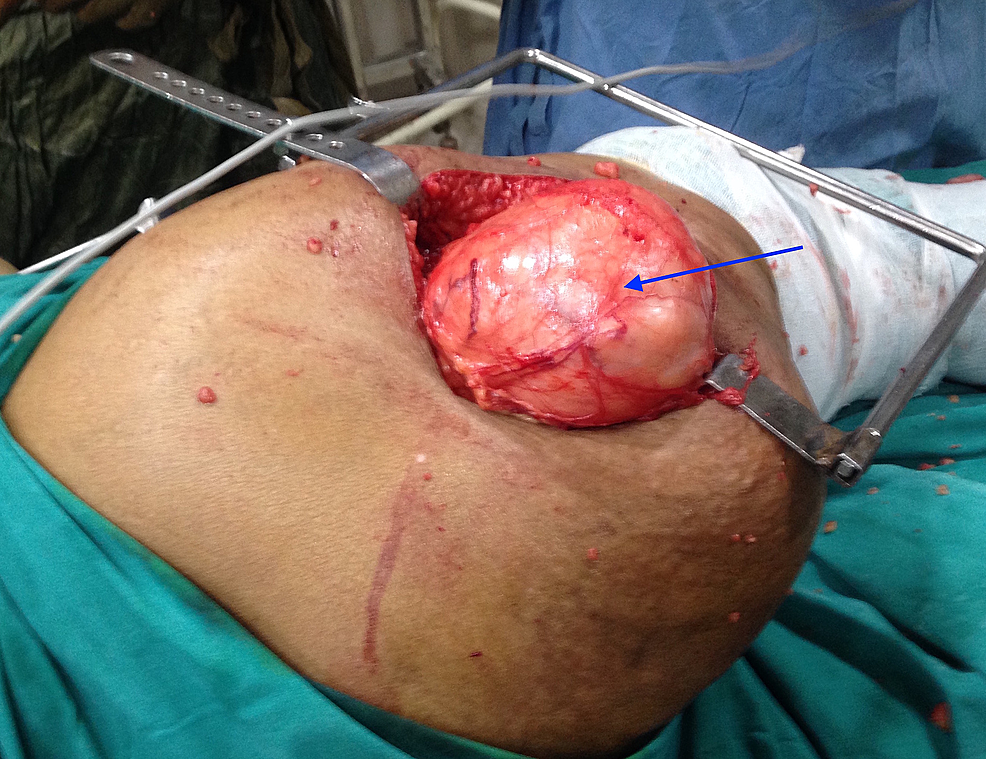 Intraoperative-picture-showing-the-tumour-mass