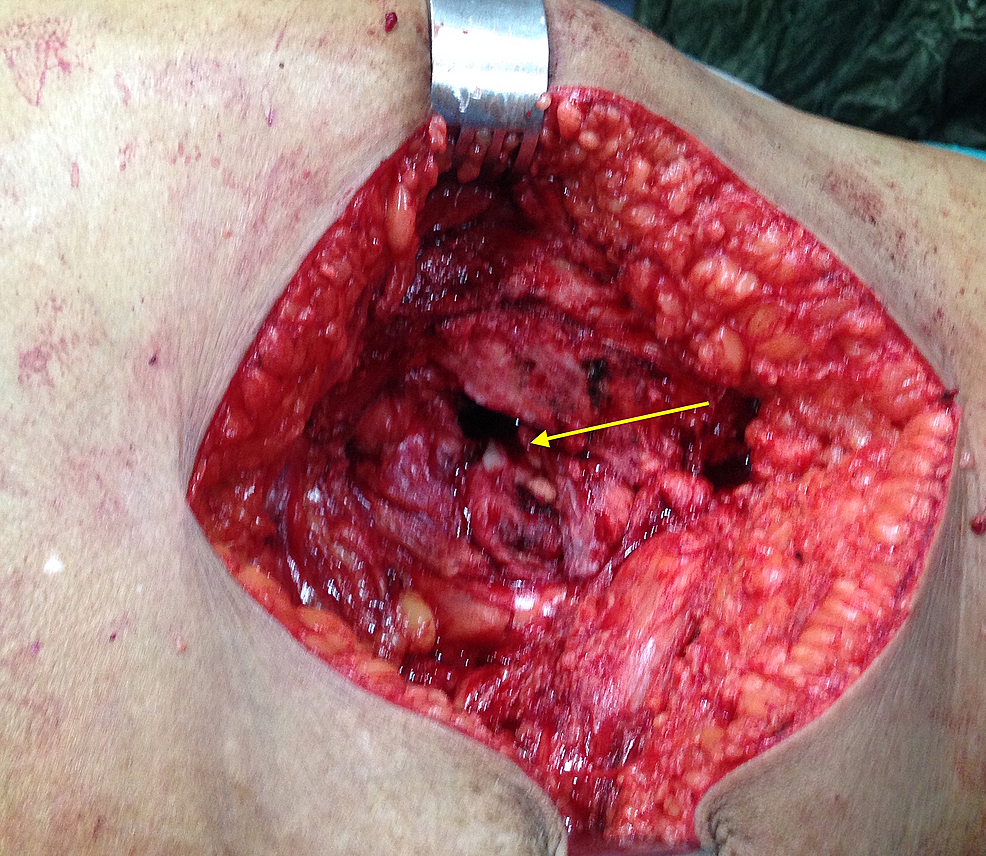 Intraoperative-picture-showing-the-basal-(osseous)-part-of-the-tumour-mass