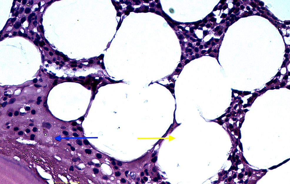 Microscopic-view-showing-tumour-mass-consisting-of-mature-adipose-tissue-(yellow-arrow)-surrounded-by-a-thin-layer-of-vascularized-fibrous-tissue-(blue-arrow)