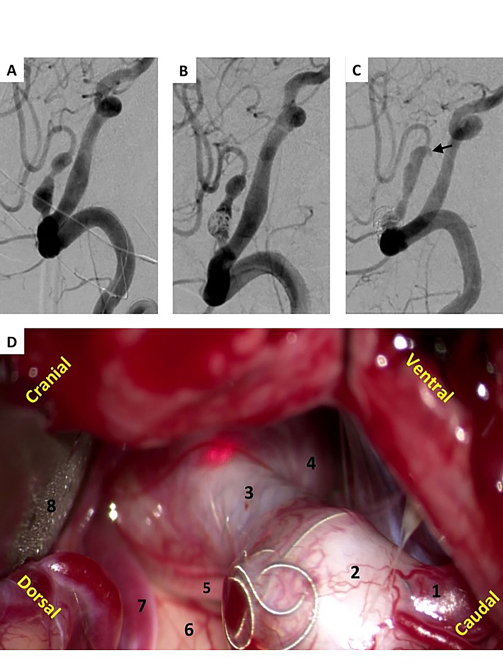 Stent-assisted-coiling-and-subsequent-clip-ligation-of-PICA-aneurysm.-