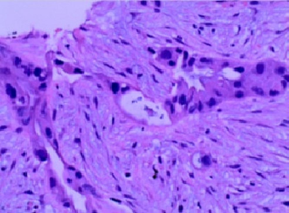 Histopathology-of-the-pancreatic-biopsy