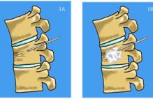 Article_box_2f293f90f96e11e694800d1bb6867708-vertebroplasty_figure_1-cropped_v1-pme