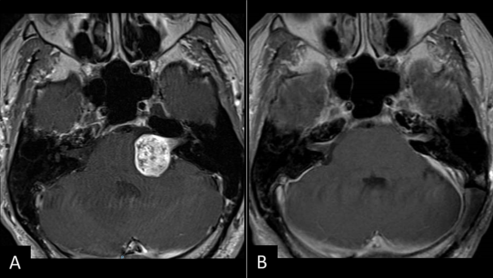 Vestibular-Schwannoma-Before-and-After-Resection