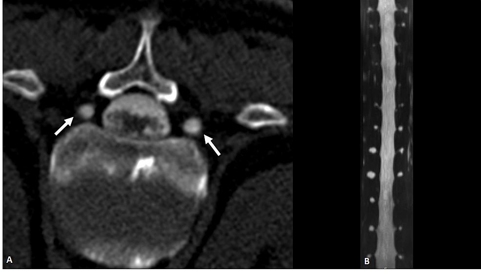 CT-Myelogram