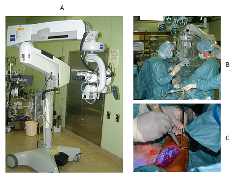 Fluorescence-surgical-microscope-(A)-and-scenes-of-PDS-during-surgery-(B-and-C)