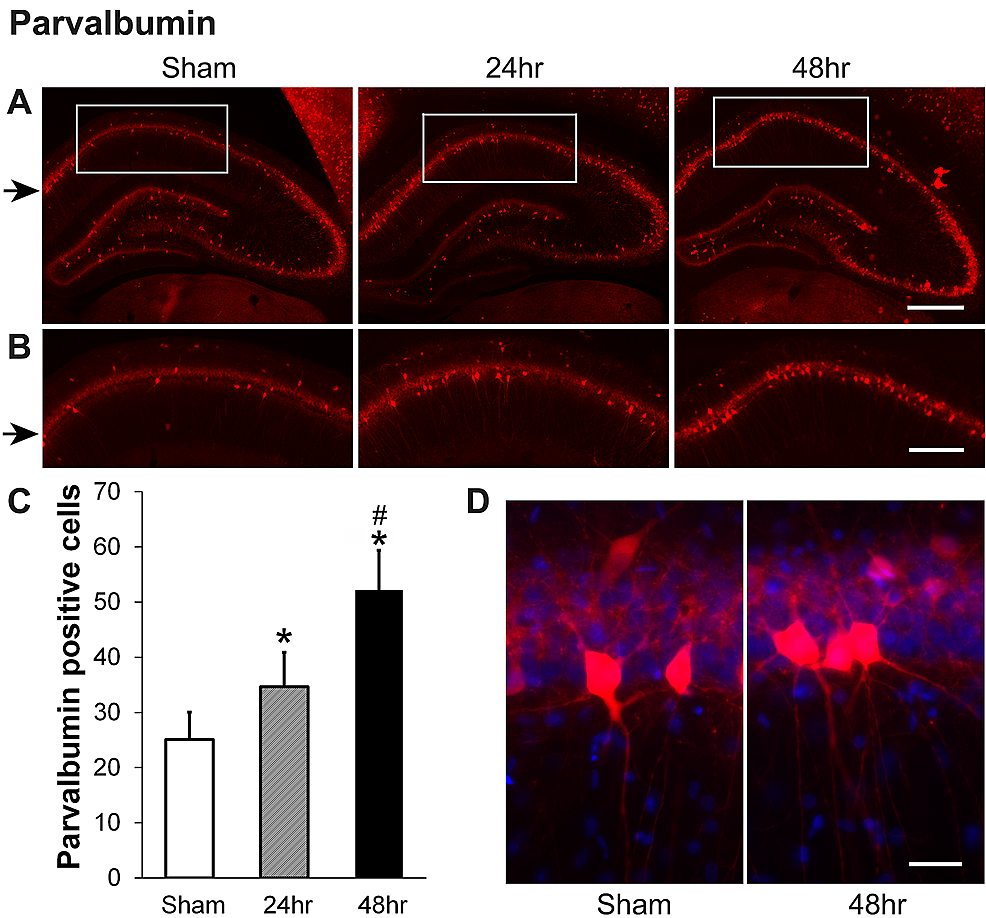 Parvalbumin-(PV)-increases-in-hippocampal-CA1-area-at-24-hour-and-48-hour-recovery-after-a-single-dose-of-60-Gy-gamma-radiation