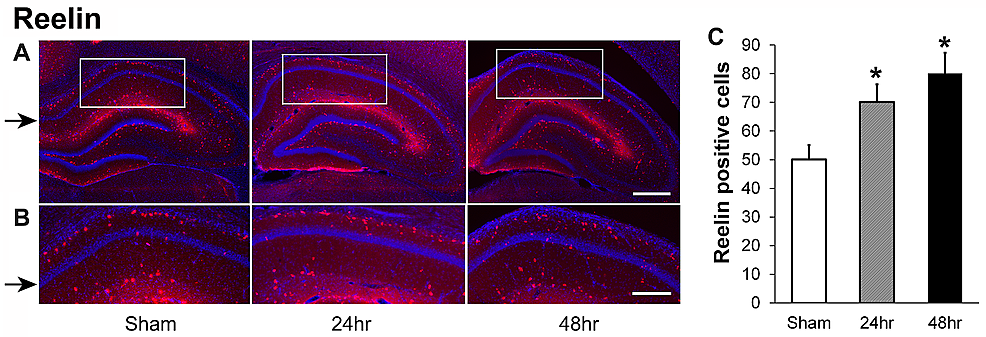 Reelin-positive-cells-increase-in-the-hippocampal-CA1-area-24-hours-and-48-hours-recovery-after-a-single-dose-of-60-Gy-gamma-radiation