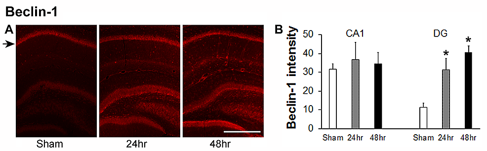 Changes-of-beclin-1-staining-in-hippocampal-CA1-and-DG-areas-24-hours-and-48-hours-after-a-single-dose-of-60-Gy-gamma-radiation