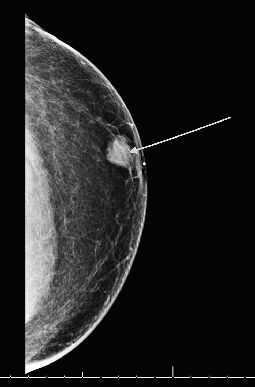 Diagnostic-mammogram-showing-the-left-breast-mass.