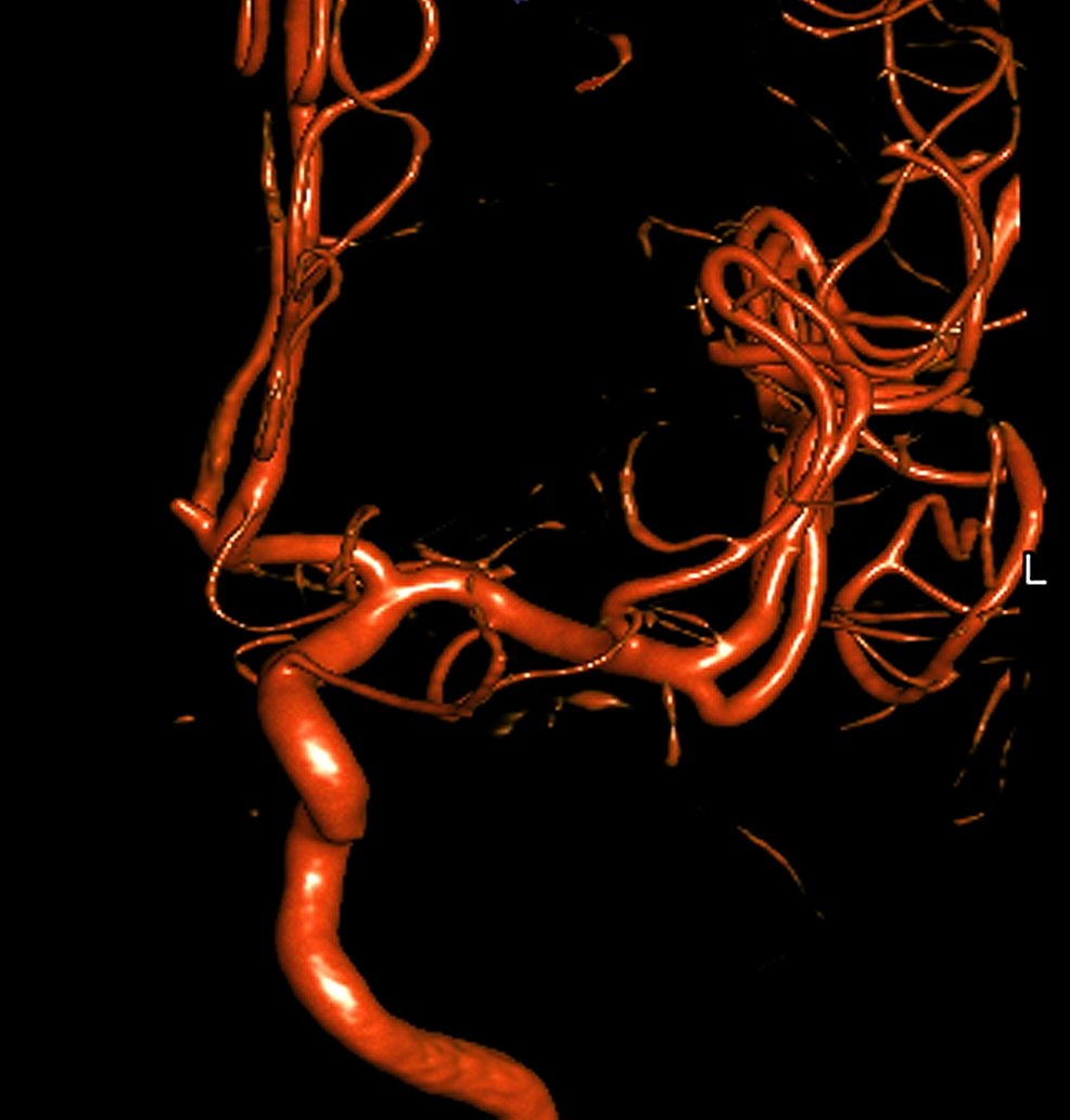 Left-internal-carotid-artery-injection-from-a-digital-subtraction-catheter-angiogram-reveals-a-small-aneurysm-of-the-anterior-communicating-artery-complex-at-the-left-A1-A2-junction.
