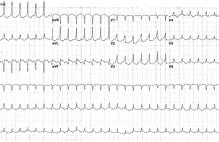 Article_box_fb497cf0329611e7828fd9b038fc2028-figure-1---tachycardia