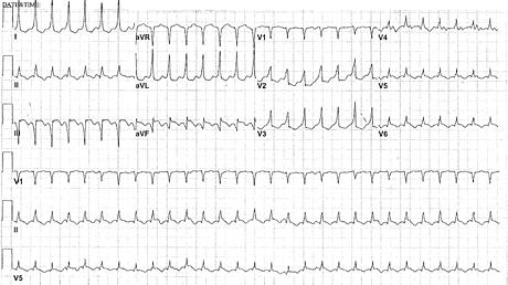 Content_card_fb497cf0329611e7828fd9b038fc2028-figure-1---tachycardia