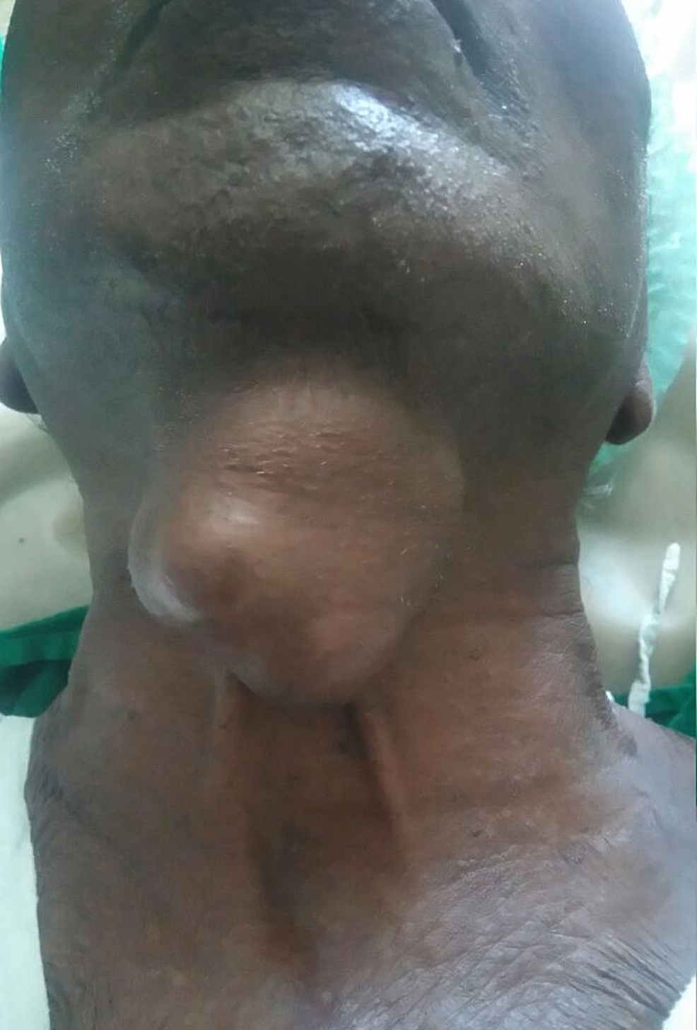 Clinical-picture-showing-a-6-x-5-cm-lobulated-mass-in-the-anterior-aspect-of-the-neck.