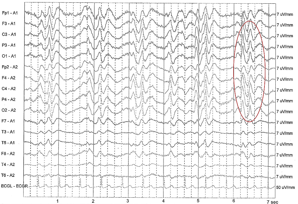 Periodic-synchronous-biphasic-sharp-wave-complex-(PSWC)-in-electroencephalography-(red-circle).-