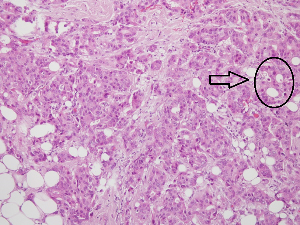 Histopathological-examination-showing-a-solid-mass-and-gland-forming-atypical-epithelial-cells-indicative-of-nuclear-grade-2-invasive-ductal-carcinoma-(x100)