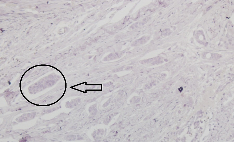 Immunohistochemical-examination-of-the-tumor-showing-negativity-for-human-epidermal-growth-factor-2-receptors-(x200)