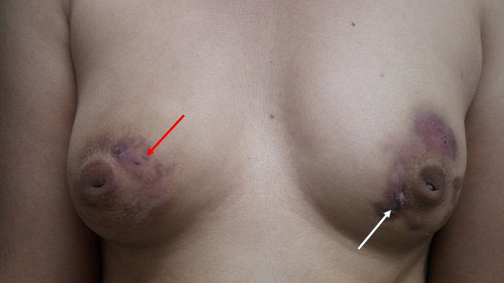 Bilateral-breasts-showing-disappearance-of-erythematous-plaque-(white-arrow)-and-sinus-(red-arrow)-after-treatment-with-antitubercular-therapy-for-one-month