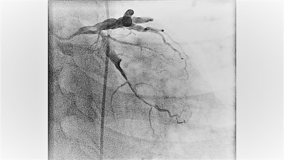 Figure-showing-the-angiography-of-left-circumflex-artery