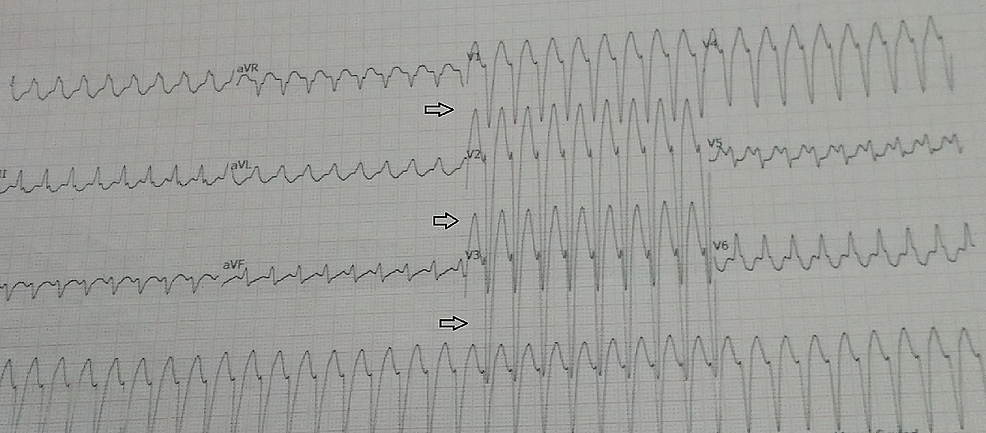 ECG-tracing-shows-palonosetron-induced-VT