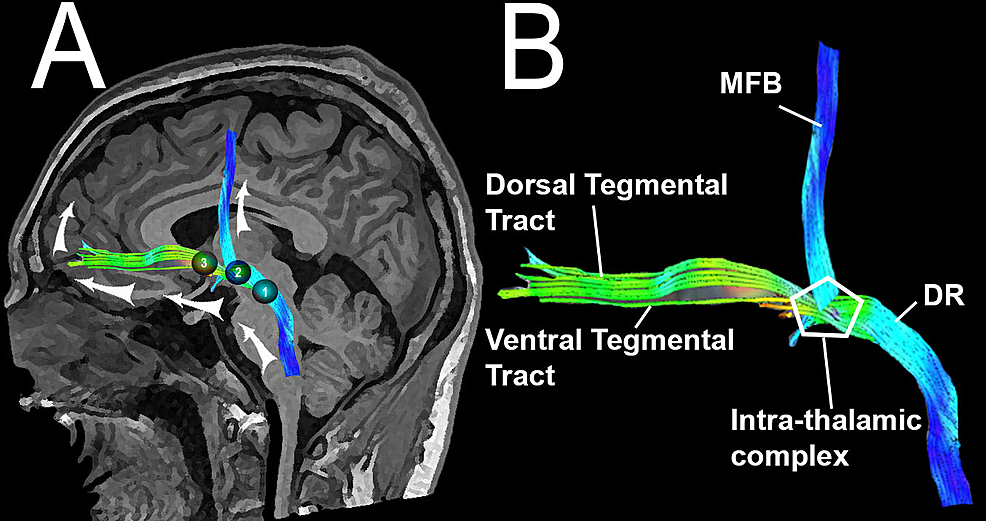 Cureus Reconstruction Of The Ascending Reticular Activating System