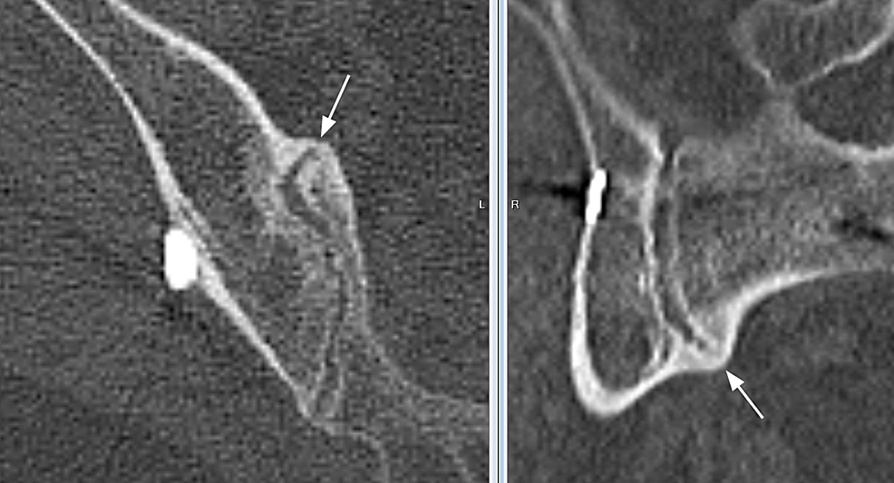 Axial-and-sagittal-plane-sections-through-a-region-of-the-sacroiliac-joint-where-both-primary-readers-identified-solid-bridging-bone-relative-to-the-anatomy.-Confirmation-of-the-bridging-bone-seen-at-the-intersection-of-two-orthogonal-planes-was-used-to-increase-confidence-in-the-assessments.-The-white-arrows-point-to-the-bridging-bone.-Note-that-sections-do-not-reproduce-as-well-in-print-as-they-do-on-high-quality-monitors.
