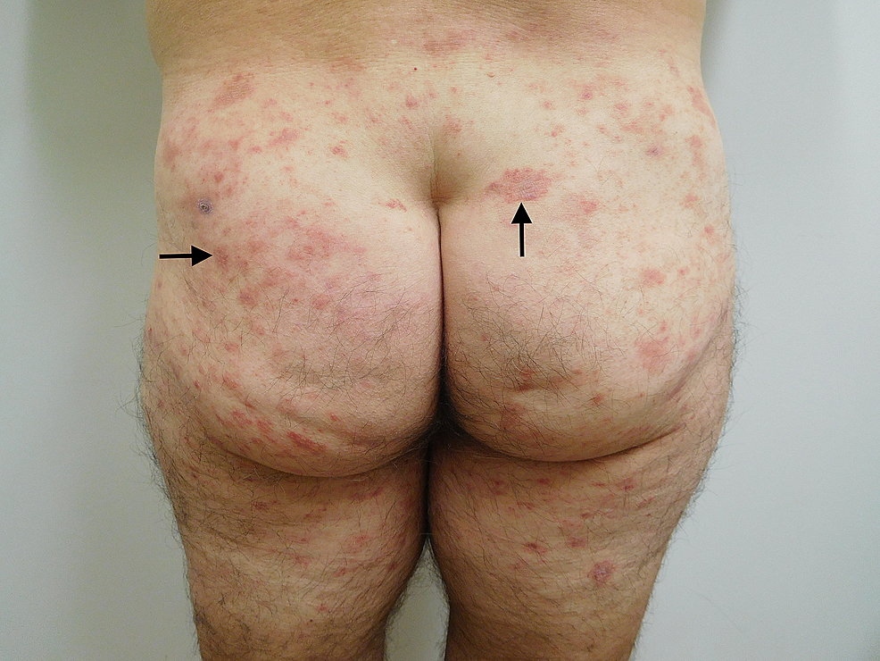 Testopel-associated-dermatitis-on-both-buttocks