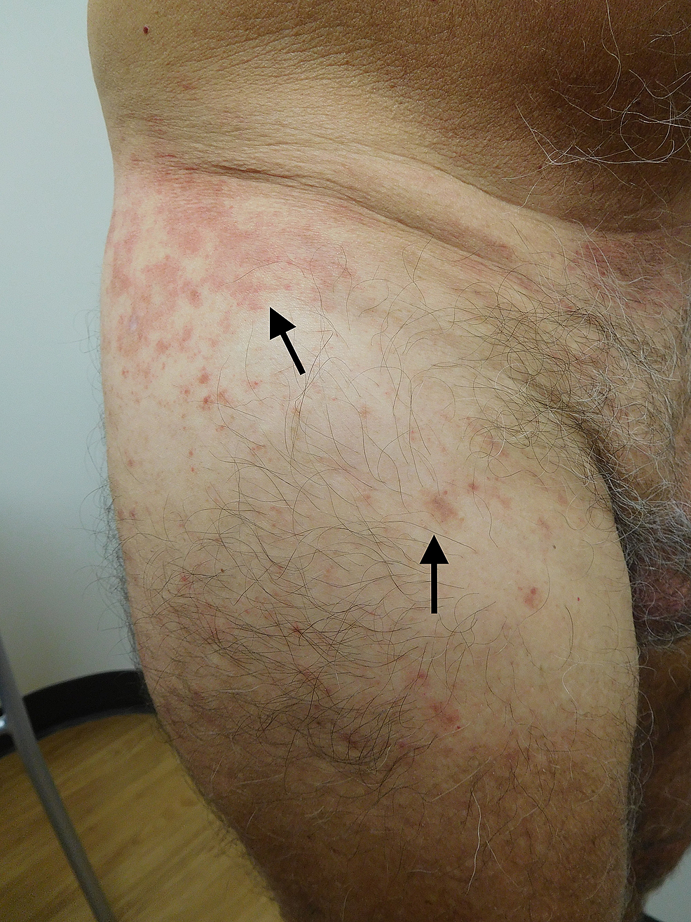 Testopel-associated-dermatitis-on-lateral-and-anterior-right-thigh