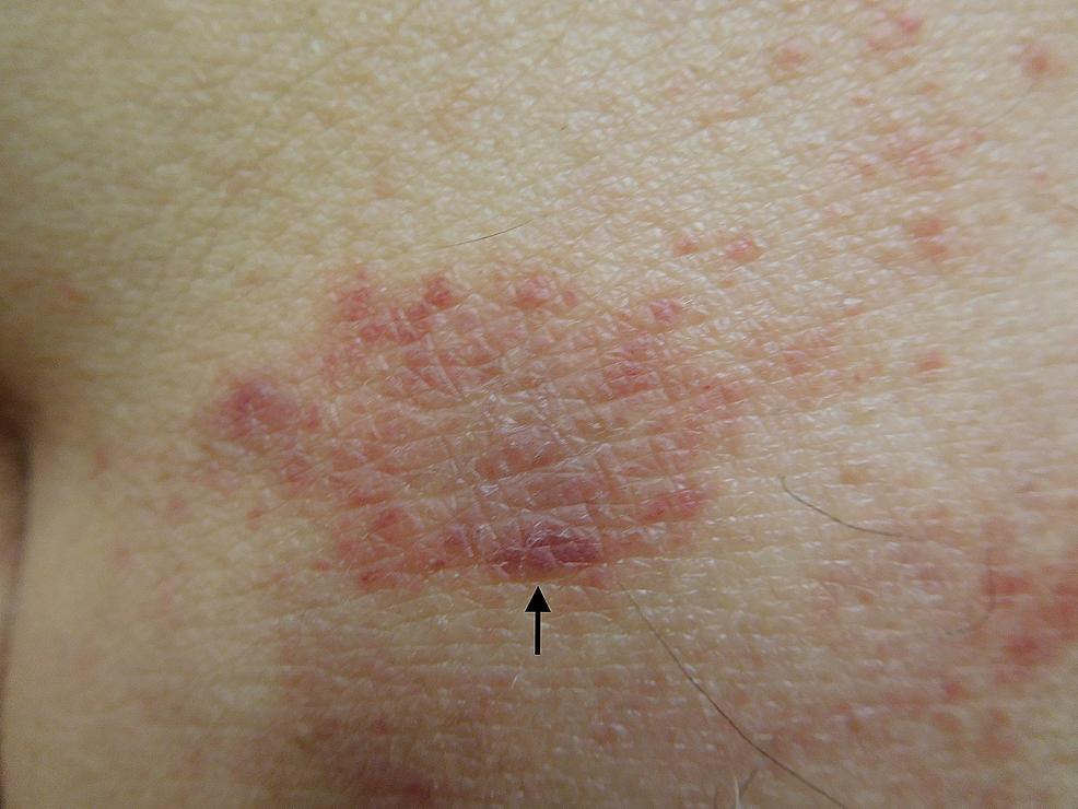 Testopel-associated-dermatitis-