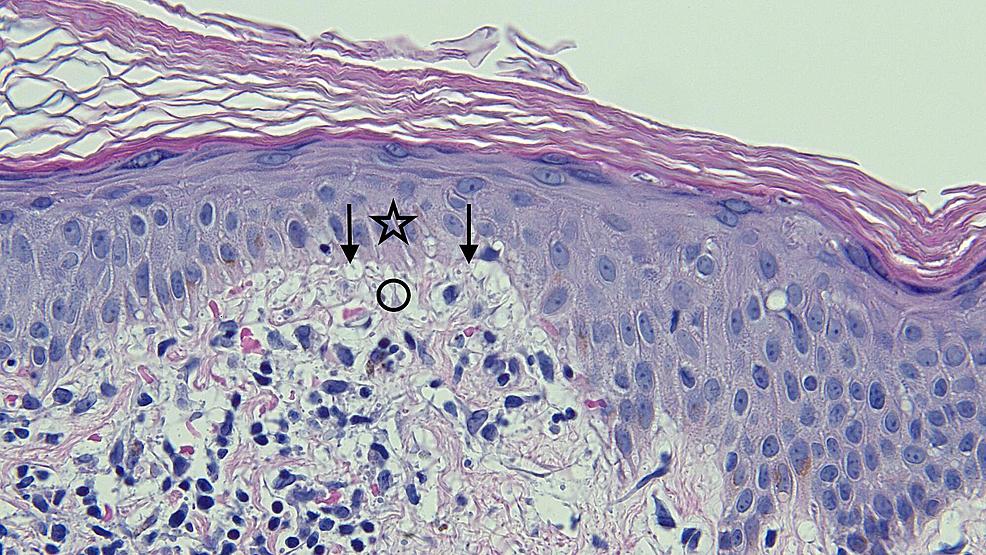 Closer-view-of-the-microscopic-examination-of-Testopel-associated-vacuolar-interface-dermatitis