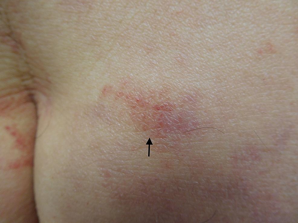 Recurrent-Testopel-associated-dermatitis