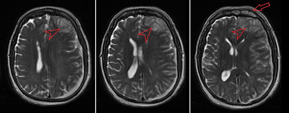 T2-weighted-magnetic-resonance-imaging-(MRI)-showing-complex-left-sided-acute-subdural-fluid-collection-with-left-frontal-abscess-(arrowhead),-and-sinusitis-(arrow).