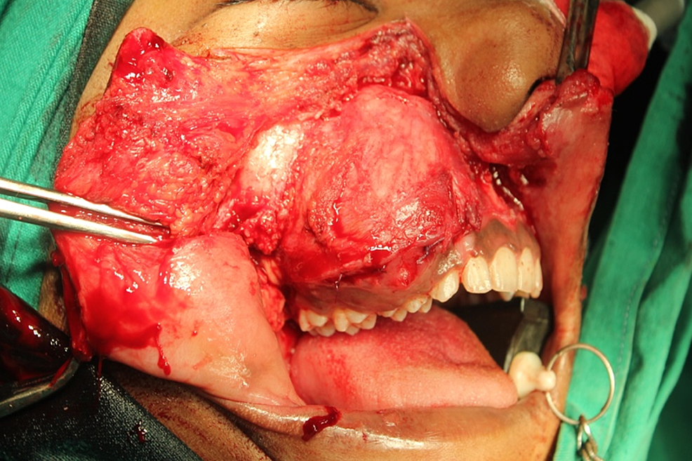 Intraoperative-surgical-access-and-exposure-of-the-lesion-using-the-Weber-Fergusson-incision.