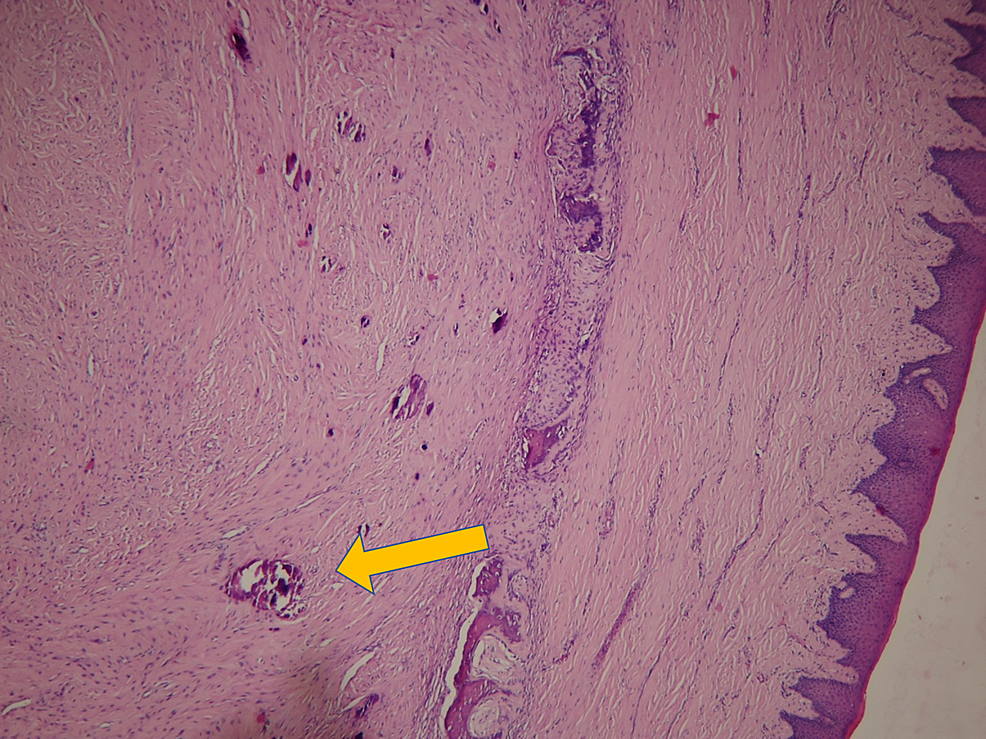 Hematoxylin-and-eosin-stain-showing-histopathological-juvenile-ossifying-fibroma-(yellow-arrow)-under-10X-magnification.