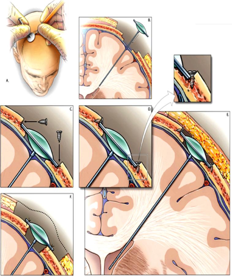 recession of ommaya reservoir improves cosmesis in patients, Skeleton