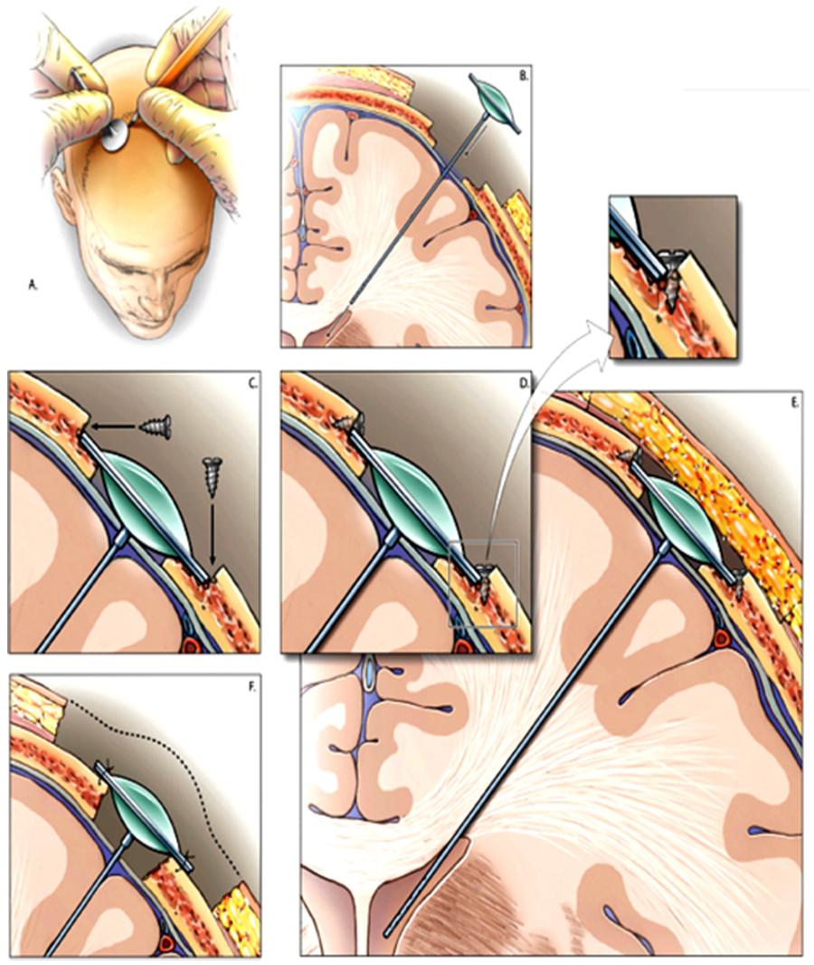 cureus | recession of ommaya reservoir improves cosmesis in, Skeleton