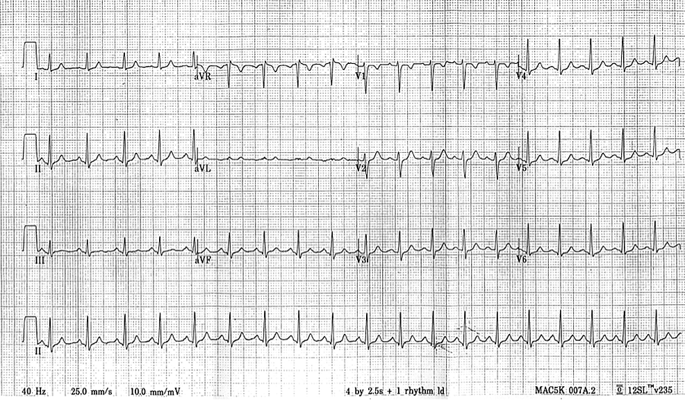 EKG-to-be-provided-to-trainee-on-request--