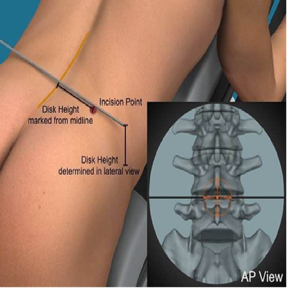 The-incision-point-is-chosen-to-give-a-45º-angle-for-approach-to-the-spine-