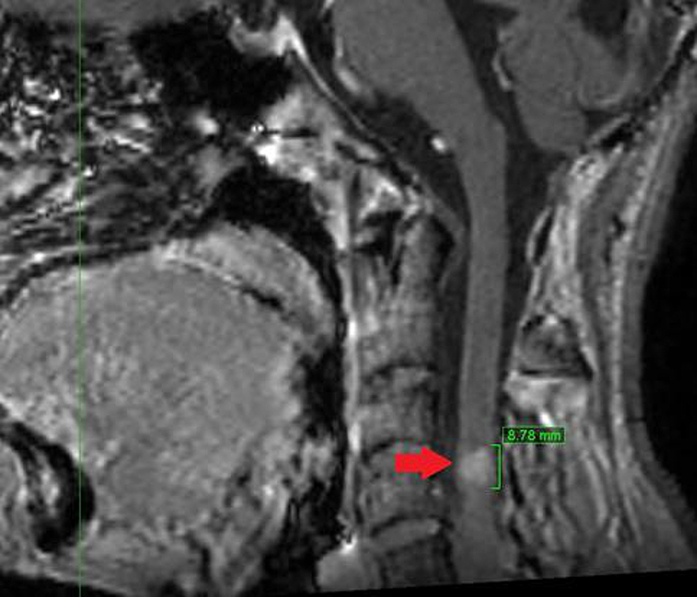 Sagittal-view-of-magnetic-resonance-imaging,-slice-thickness-1.2-mm,-lesion-at-C3-C4-level-marked-with-red-arrow