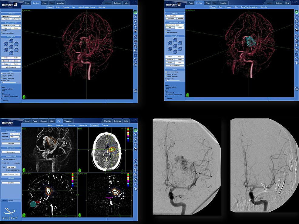 Integration-of-3D-rotational-angiography-in-CyberKnife-treatment-planning-of-arteriovenous-malformations.