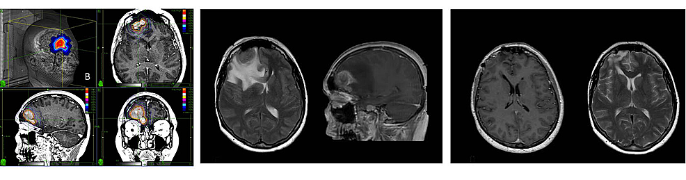 Single-fraction-CyberKnife-radiosurgery-treatment-of-a-right-frontal-meningioma-causing-symptomatic-post-treatment-edema-(PTE)-with-resolution-after-surgical-resection-of-the-tumor.