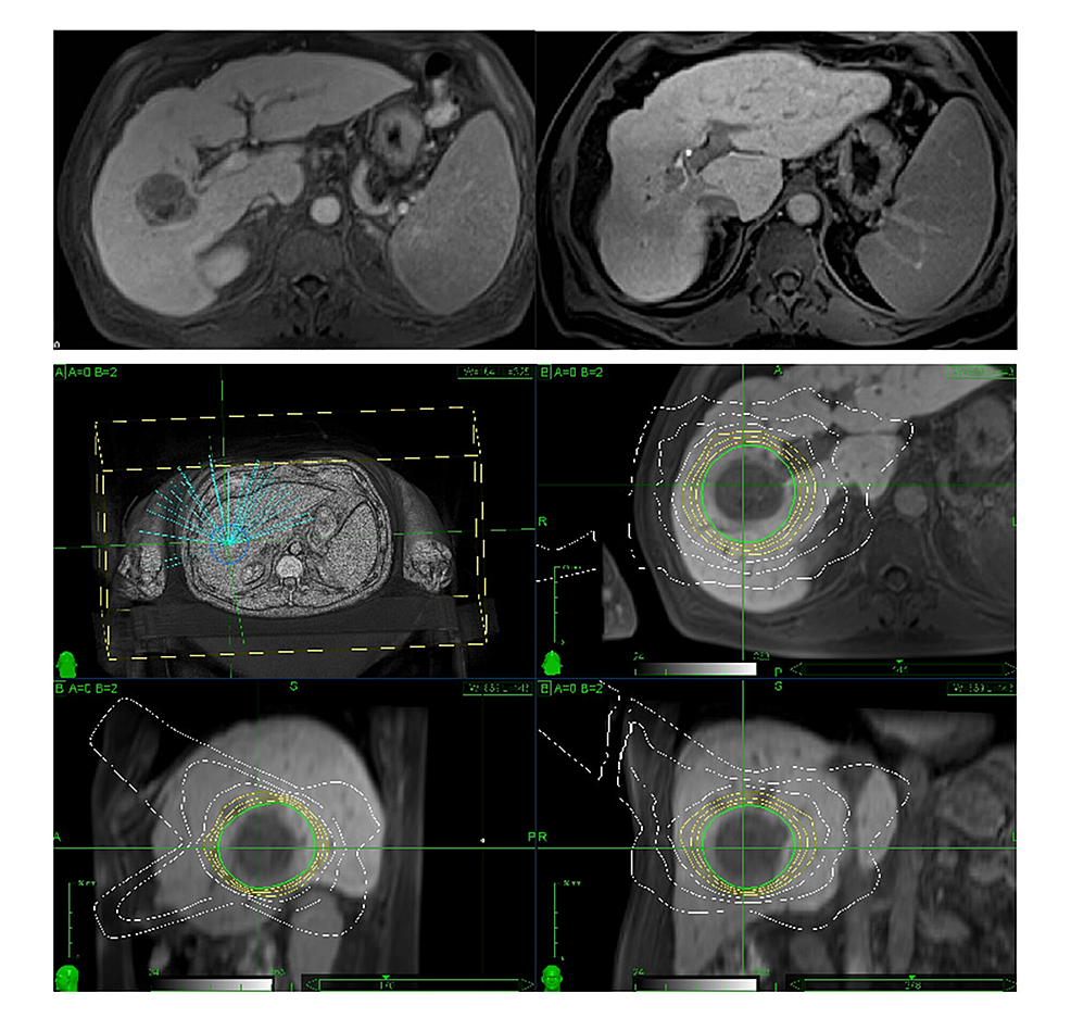 Treatment-of-a-centrally-located-hepatocellular-carcinoma-in-segment-7-in-a-patient-with-Child-A-cirrhosis.-Imaging-before-and-after-CK-radiosurgery-(above)-and-prescription-planning-(below).