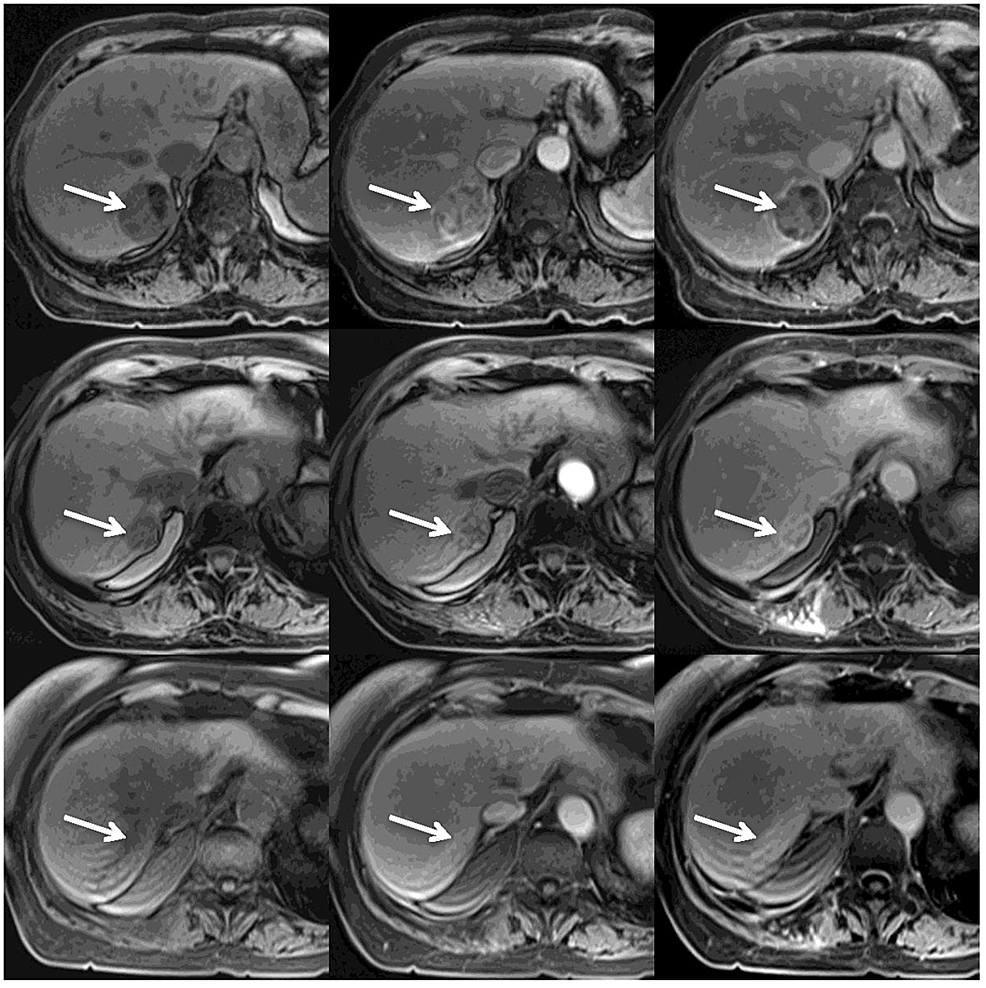 MRI-Treatment-Response
