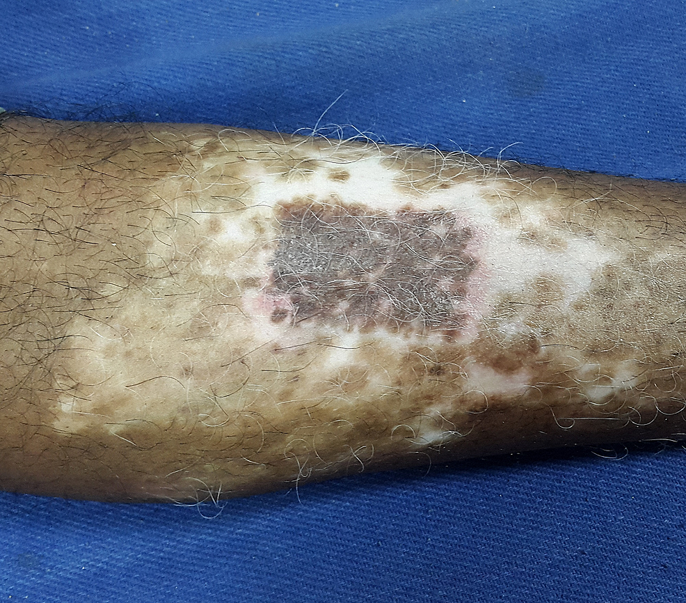 The-recipient-site-at-the-end-of-eight-weeks-showing->95%-of-repigmentation-of-the-treated-site.