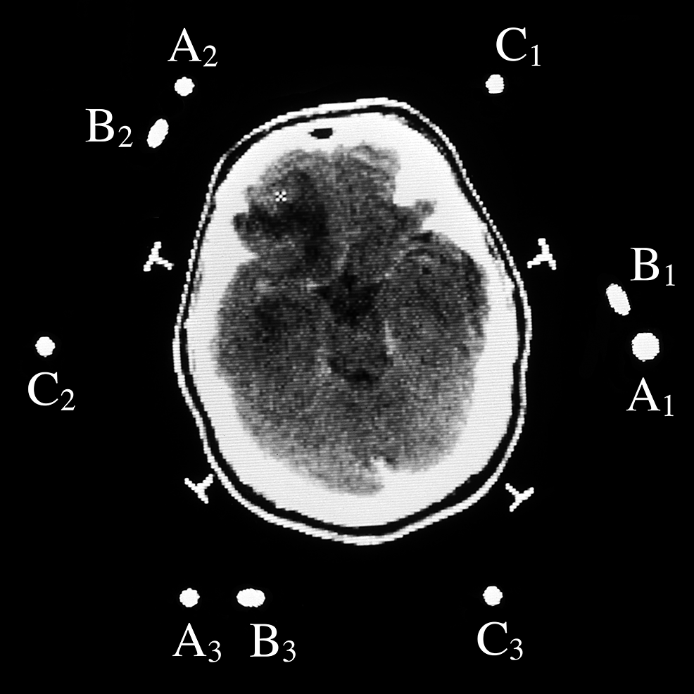 Cranial-computed-tomography-(CT)-scan-image-of-a-patient-surrounded-by-three-N-localizers