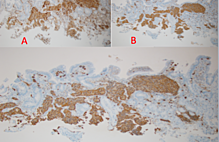 Article_box_9650ef80641b11e6a4c88be59533f056-ihc_stain