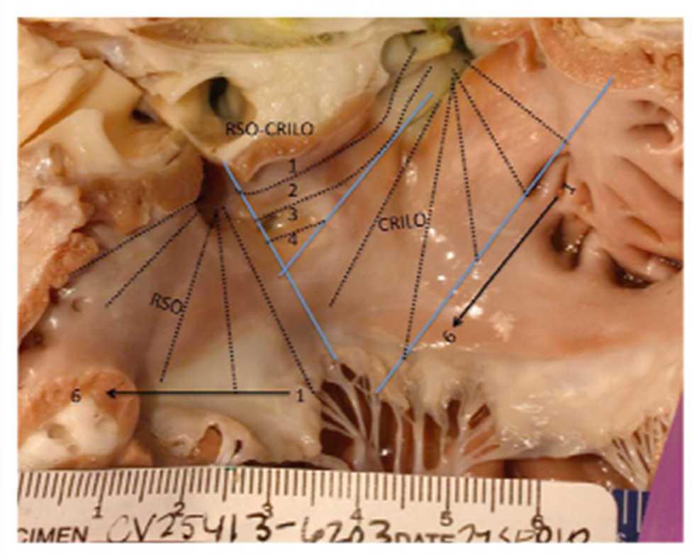Gross-image-of-sections-evaluated-in-left-atrium.
