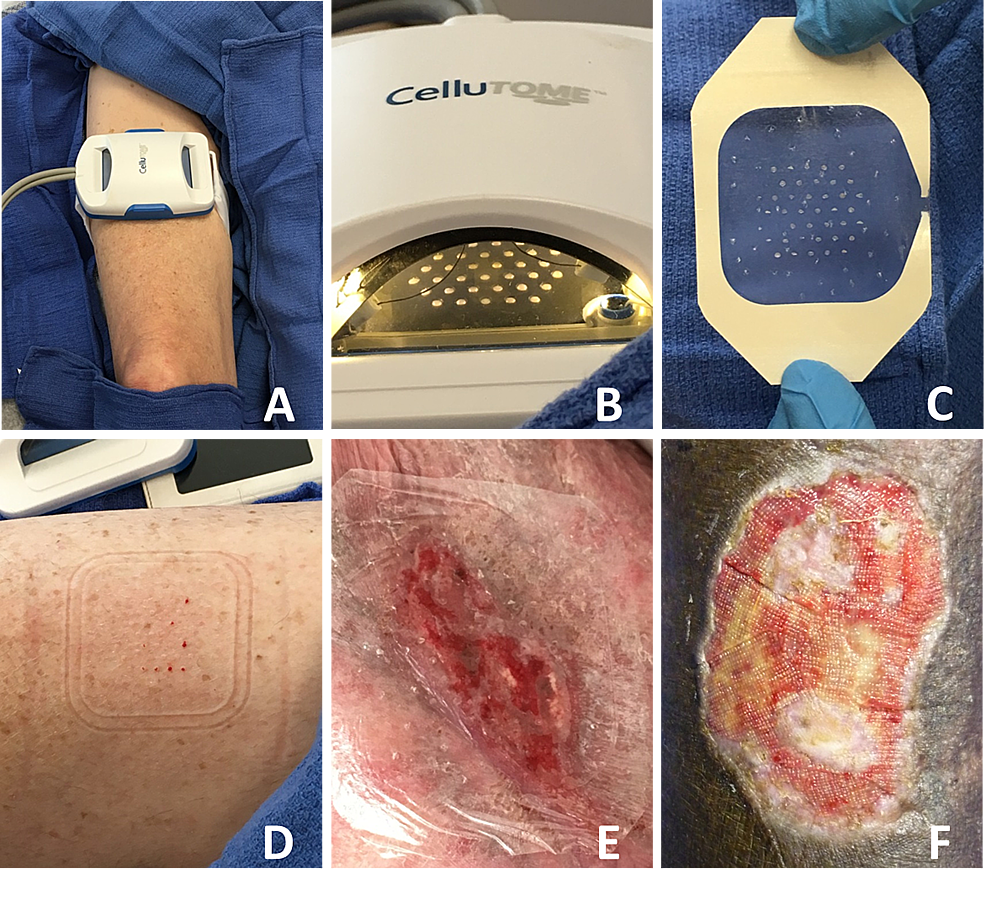 Epidermal Autologous Skin Graft Harvested Using the CelluTome™ Epidermal Harvesting System.