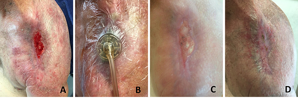 63-Year-Old Current Smoker of Over 30 Pack-Years Status-Post Radical Resection and External Radiation for Basal Cell Carcinoma of the Left Shoulder.